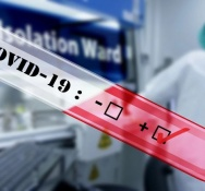 CPS detects COVID-19 among its staff